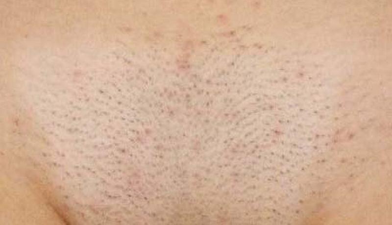 Уменя много волос на вагине фото 507-938