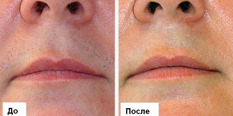 Результат депиляции на лице